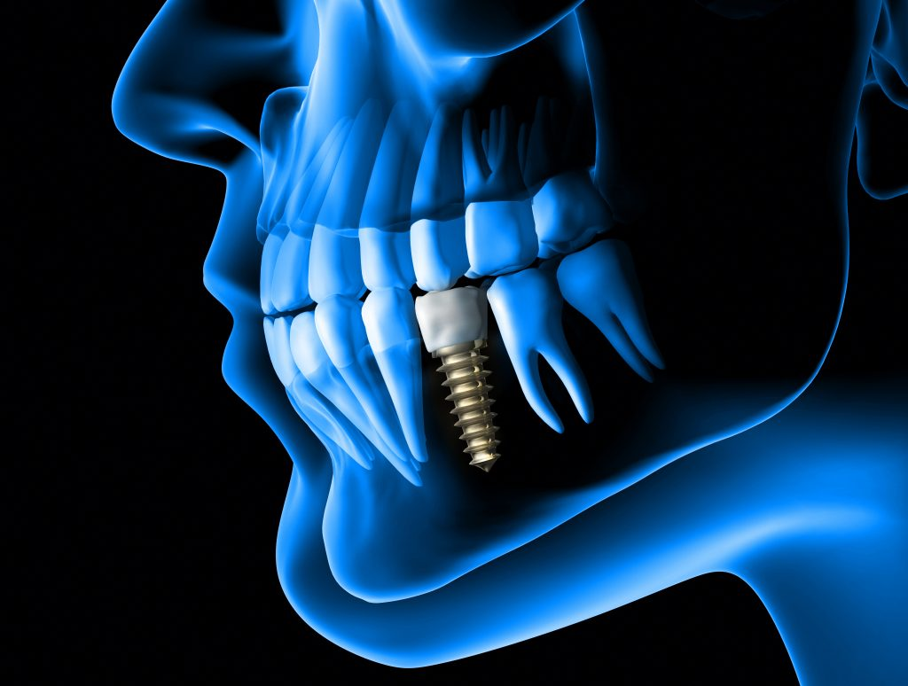 implantate - zahnarzt mariendorf
