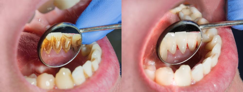 prophylaxe - zahnarzt mariendorf - berlin